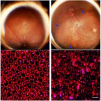 Atrofia geografica retinica (Fonte: Ambati Laboratory, University of Kentucky, Usa)