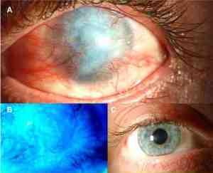 In alto: occhio colpito da ammoniaca. In basso: occhio sano (a destra) e anomalie della cornea occhio causticato (a sinistra)
