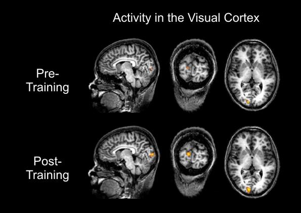 Attività nella corteccia cerebrale prima e dopo l'addestramento visivo (Foto: F. Scharnowski)