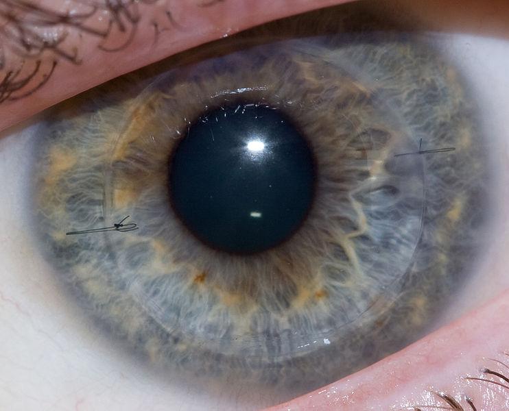 cornea trapiantata