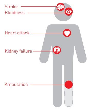 Le principali complicazioni del diabete non controllato secondo l'OMS: ictus, cecità, infarto, insufficienza renale, piede diabetico (amputazione)