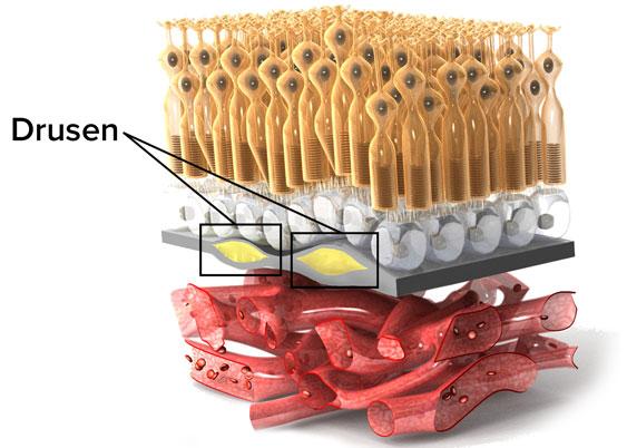 Accumuli di scarto nella retina (drusen), che a lungo andare possono compromettere  la visione