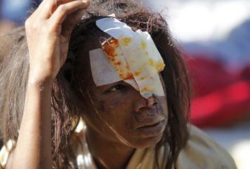 Haiti, terremotato ferito (Fonte: Cbm Italia)
