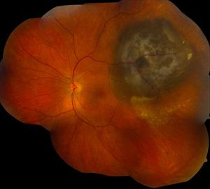 Melanoma oculare (Fonte: Washington University St. Louis)
