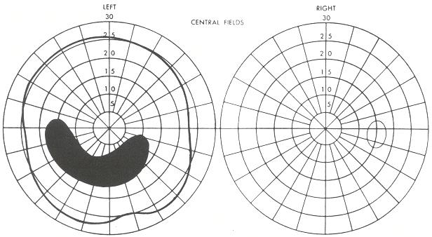 Scotoma arciforme (Fonte: www.ncbi.nlm.nih.gov)
