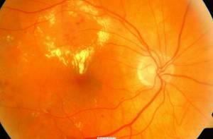 Edema maculare diabetico