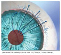 microstent sperimentato negli Usa (Hydrus I)