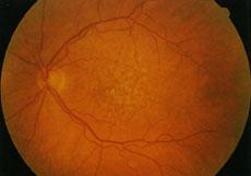 Forma secca di AMD, attualmente incurabile. La prevenzione di questa malattia retinica, che può colpire dopo i 55 anni, è fondamentale