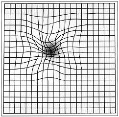 Zona centrale di non visione (scotoma) e deformazione delle linee rette tipica di un malato di AMD (test di Amsler)