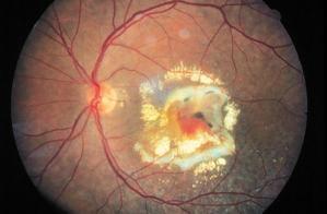 La degenerazione maculare legata all'età (forma umida nella foto) è devastante per la retina centrale
