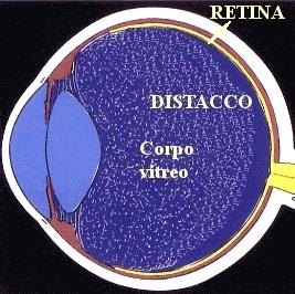 Distacco del corpo vitreo