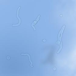 Miodesopsie (simulazione al computer)