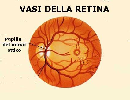 Quando i vasi della retina proliferano in modo incontrollato possono essere dannosi per la vista