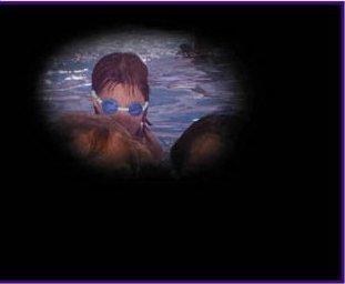 Visione di glaucomatoso (stadio avanzato della malattia)