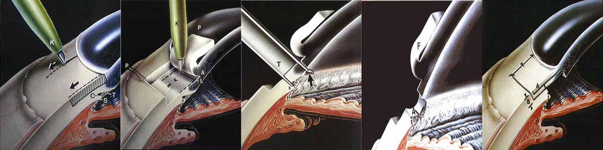 L'intervento di trabeculectomia consiste nell'incisione del limbus corneo-sclerale contenente il trabecolato e il canale di Schlemm per creare uno
