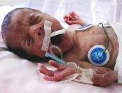 Neonata prematura
