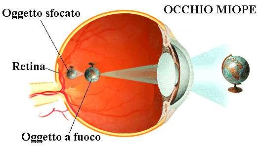 Immagine: occhio miope