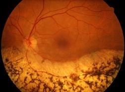 Retina di persona colpita da retinite pigmentosa