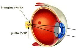 Immagine: occhio ipermetrope con fuoco
