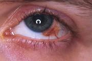 melanoma congiuntivale Fonte: uveiti.it)