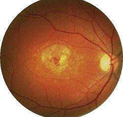 Fondo oculare di malato di Stargardt