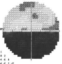 Campo visivo di una persona colpita da neurite ottica: c'è una area scura che indica la zona di non visione.