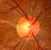 Testa del nervo ottico (papilla ottica)