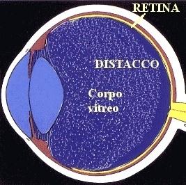 distacco posteriore di vitreo