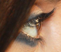 Occhio di profilo con cornea sana: la superficie trasparente di fronte alla iride è perfettamente integra