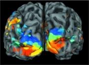 cervello-aree_corteccia_cerebrale_per_visione-universita_di_monaco-photospip1ed11b5a5f33d6f8e213c7c408a36600.jpg