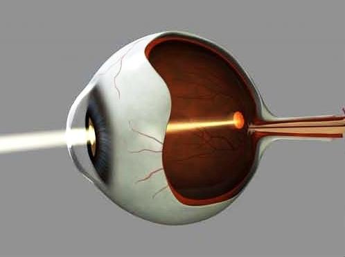 La luce colpisce il centro della retina chiamato macula (Immagine: Lund University)
