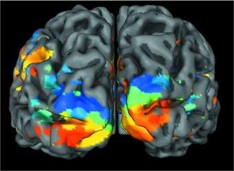 Aree del cervello deputate alla visione (Fonte: Università di Monaco). Le zone laterali corrispondono ai lobi temporali mentre quella frontale alla zona occipitale (posta sopra la nuca)