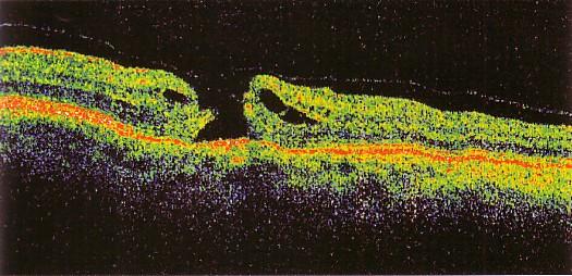 Foro maculare della retina (Immagine ottenuta con OCT)