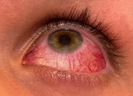 infezione agli occhi dai contatti