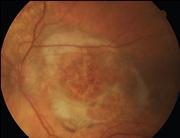 Fondo oculare di malato di AMD neovascolare (immagine: JAMA)