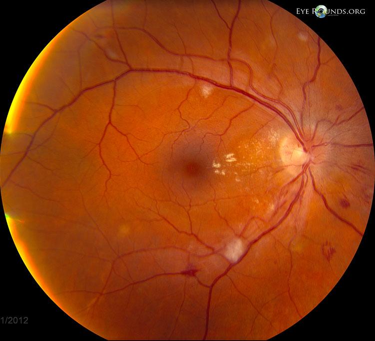 Effetti della retinopatia ipertensiva (foto: Università dell'Iowa, Usa)