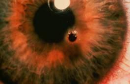 Scheggia penetrata nella cornea (Fonte: www.savesightsociety.org.nz)