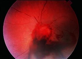 Emorragia retinica da trauma (foto: Am Fam Physician)