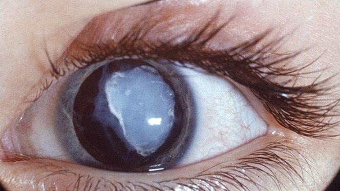 Cataratta traumatica (in seguito a un colpo ricevuto sull'occhio)