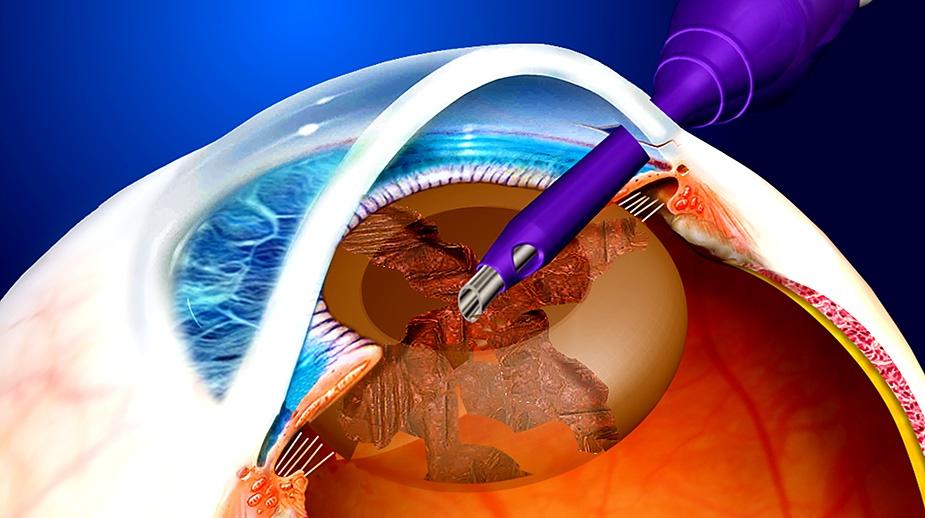 Facoemulsificazione (frantumazione del cristallino con gli ultrasuoni)