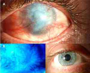 Causticazione corneale (in alto)