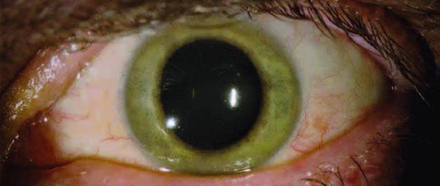 Il colore di un occhio di Ian Crozer è cambiato (da azzurro a verdastro) a causa del virus Ebola