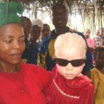 Bambino albino