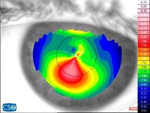 cheratocono topografia corneale