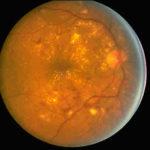 retinopatia_diabetica-fundus_oculi.jpg