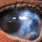 occhio-glaucomatoso-web.jpg