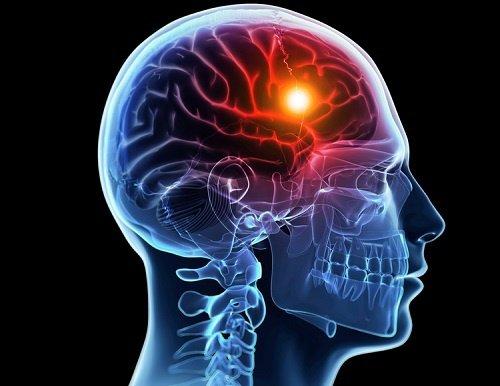 ictus-cervello-grafica-web.jpg