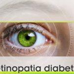 Occhio alla retinopatia diabetica