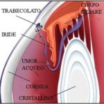 glaucoma_trabecolato-lower.jpg