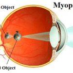 occhio_miope_con_immagine-web-eng.jpg